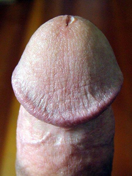 Penis's Penis